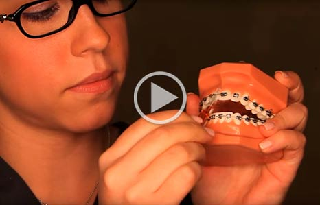 Wearing Braces Icon Orthodontics Surprise Glendale AZ